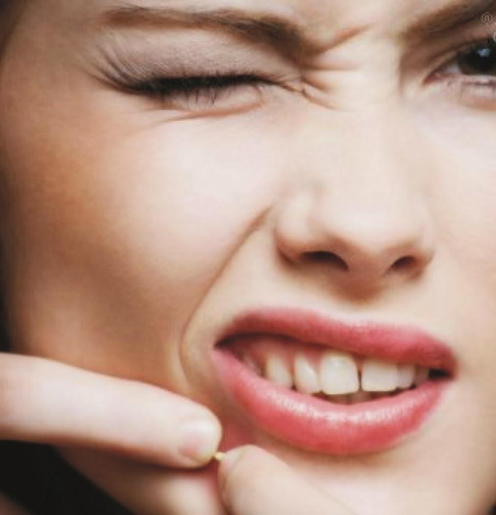 DIY Acne Help