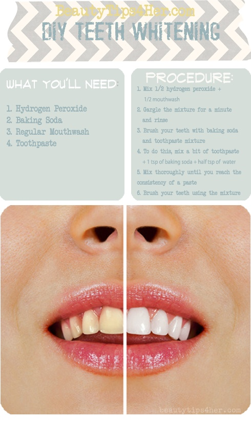 Teeth Whitening Archives Home And Heart Diy